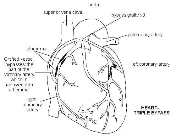cardiovascular disease diagram