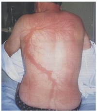 Lightning Scars | www.pixshark.com - Images Galleries With ...