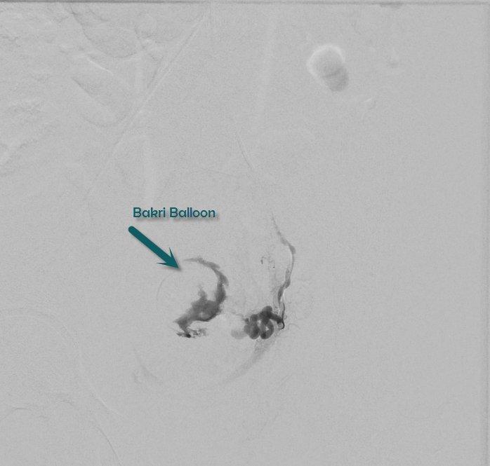 bakri balloon - Ucgenkubkireklamowe