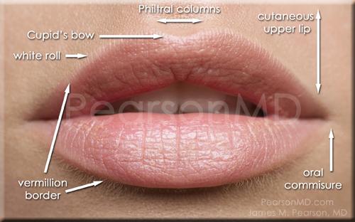 Corner Lip Lift - Dr James Pearson Facial Plastic Surgery