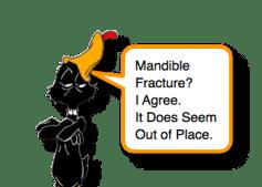 Mandible Fracture