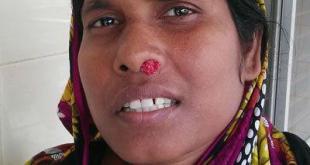 Chronic Nasal Granulomatous Disease Rhinosporodiosis
