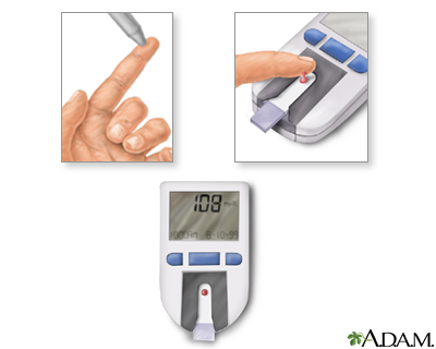 In-Depth Reports - Penn State Hershey Medical Center - Diabetes