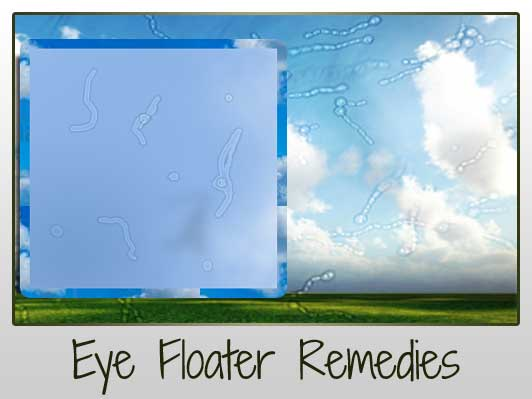 Cure Eye Floaters Naturally Remes From Around The Web
