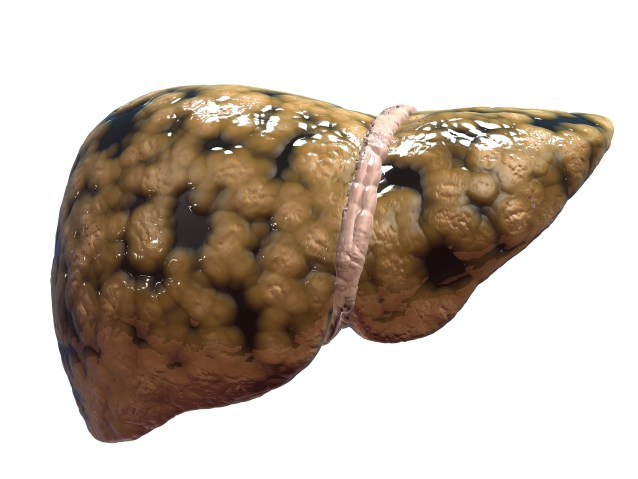 Fatty Liver – Types, Symptoms, Treatment and Diet