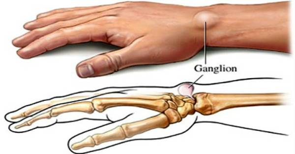 5 Home Natural Remedies For Ganglion Cysts!