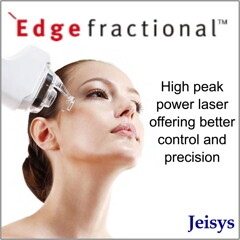 banners edge fractional