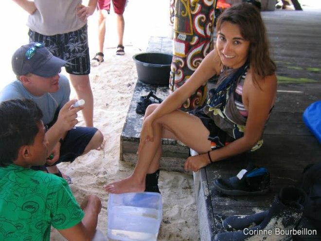 Seul remède pour apaiser la douleur d'une piqûre de stingray : de l'eau très chaude. Sangalaki, Indonésie. Juillet 2009.