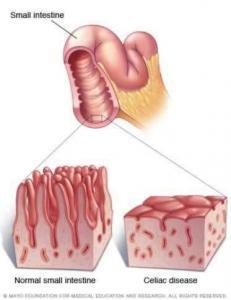 Celiac disease leads to intestinal inflammation