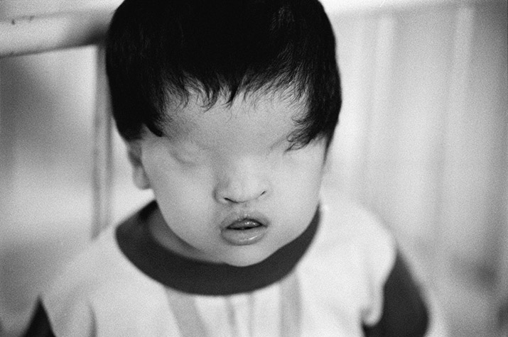 VIETNAM. Minh Vin Gung, born in Long An Province in 1993 with no trace of eyes. It is likely that in Agent Orange the dioxin blocks the receptors in the developing foetus thus preventing the hormones that would normally instruct the cells to form eyes. 2004.