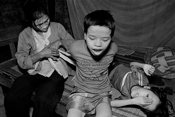 VIETNAM. Cam Nghia. Le Thi Mit ties the hands of her eldest son, Nguyen Van Lanh, sixteen, to prevent him from harming himself or others. His younger brother, Nguyen Van Truong, nine, has an eye defect that makes him very sensitive to light.1998