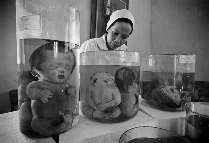 VIETNAM. Ho Chi Minh City. Deformed fetuses preserved in formaldehyde at the Tu Du Hospital.1998