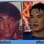 Herbert Chavez: Filipino SuperFan of Superman Plastic Surgery (Video)