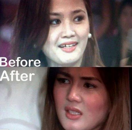 Denise Cornejo Before After
