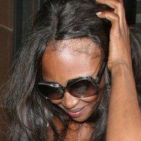 HairLine Challenge