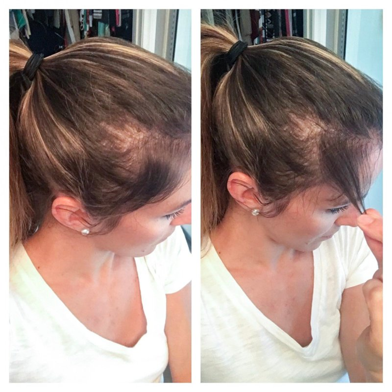 Formidable Postpartum Hair Loss Hair Reviews Hair Thickening Collagen Taking Collagen Ments Why I Take Collagen Collagen