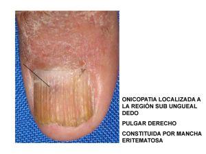 caso-tumor-una-pchang_page_3