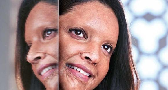 Villa Am See Deepika Padukone's First Look As The Acid Attack Survivor