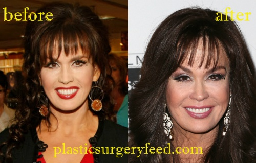 The New Botox Everyone is Having, But Would You The New Botox Everyone is Having, But Would You new pics