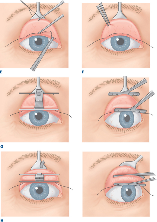 Müller\u0027s Muscle\u2013Conjunctival Resection\u2013Ptosis Procedure Combined - ptosis surgery