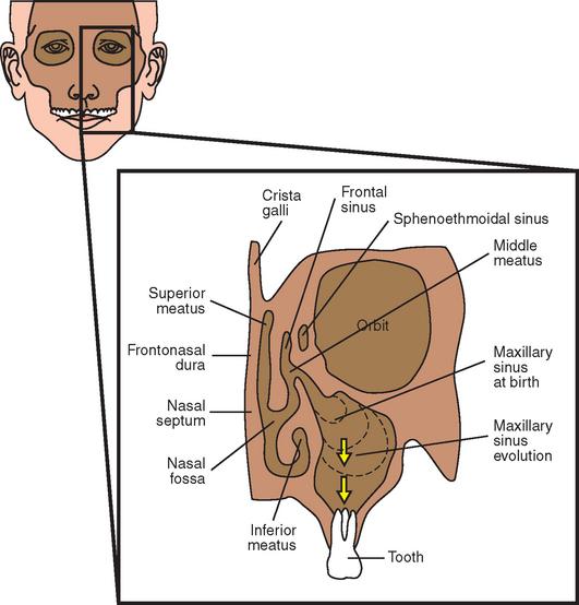38 Maxillary Sinus Anatomy, Pathology, and Graft Surgery Pocket
