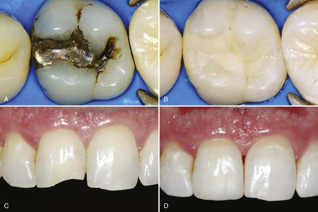8 Introduction to Composite Restorations Pocket Dentistry