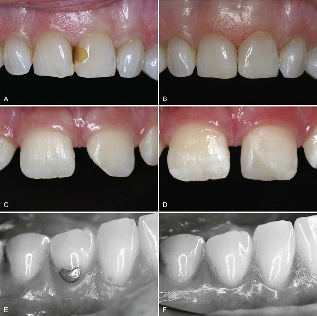 9 Class III, IV, and V Direct Composite and Glass Ionomer