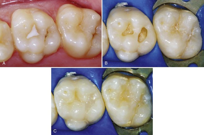 10 Class I, II, and VI Direct Composite Restorations and Other