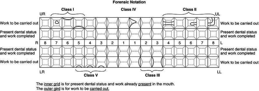 15 Restorative Dentistry Pocket Dentistry