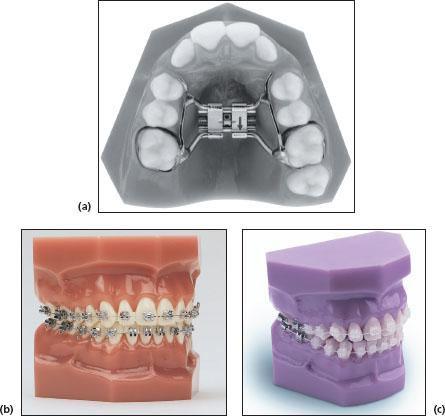 16 ORTHODONTIC INSTRUMENTS Pocket Dentistry