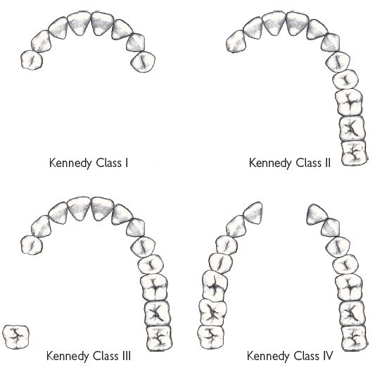 7 Prosthetics and gerodontology Pocket Dentistry