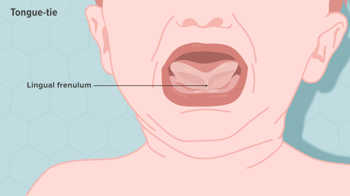 Tongue-Tie: What It Is and How It's Treated
