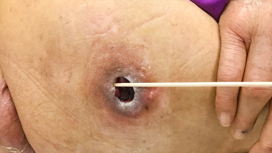 Tunneling wound