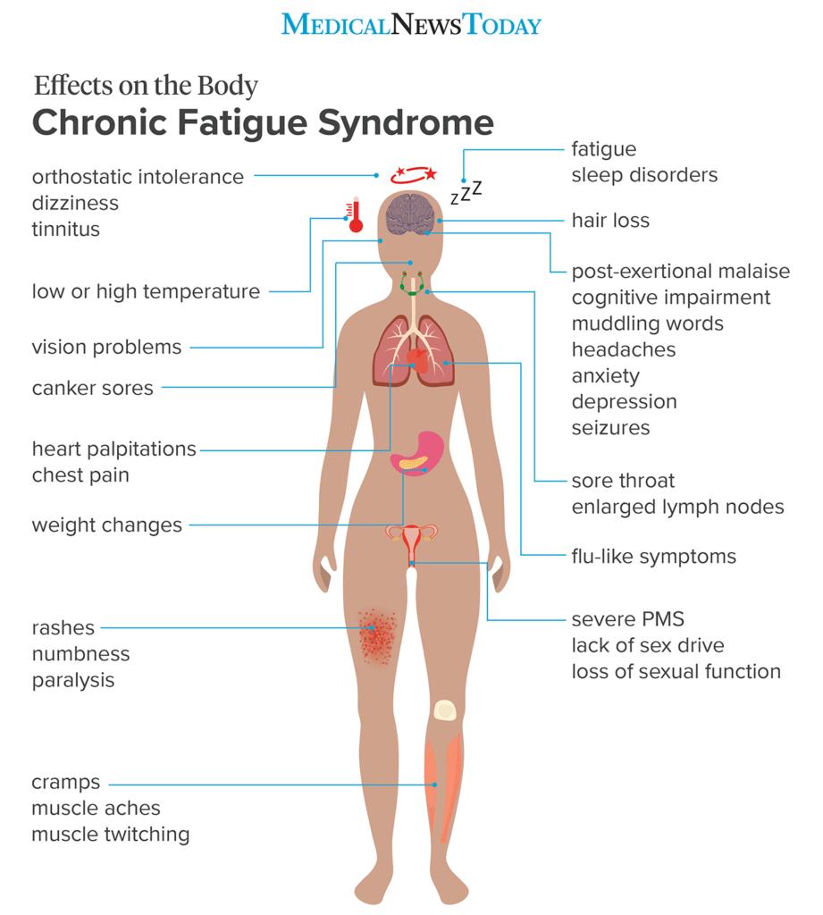 Какво да знаете за синдрома на хроничната умора