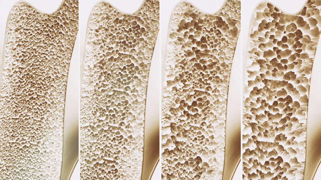 Stages of osteoporosis to accompany an article about vitamin D deficiencies in men and aging.