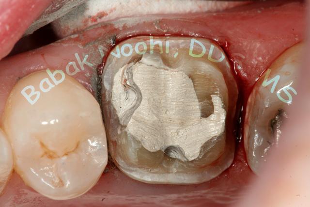 Capitol Hill Dentistry - Onlays vs Crowns
