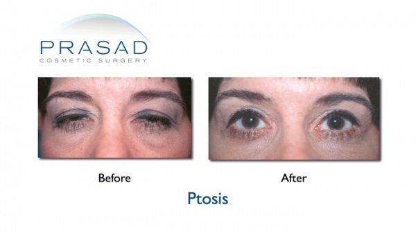 Ptosis surgery Before And After Photos Drooping eyelid Dr Prasad - ptosis surgery