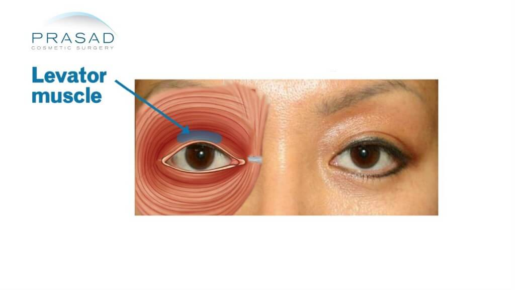 Ptosis Surgery Droopy eyelid - New York Specialist - ptosis surgery