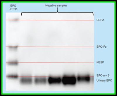Blog - Precision Biosystems-Automated, Reproducible Western Blot