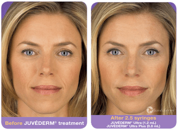 juvederm-before-after-1
