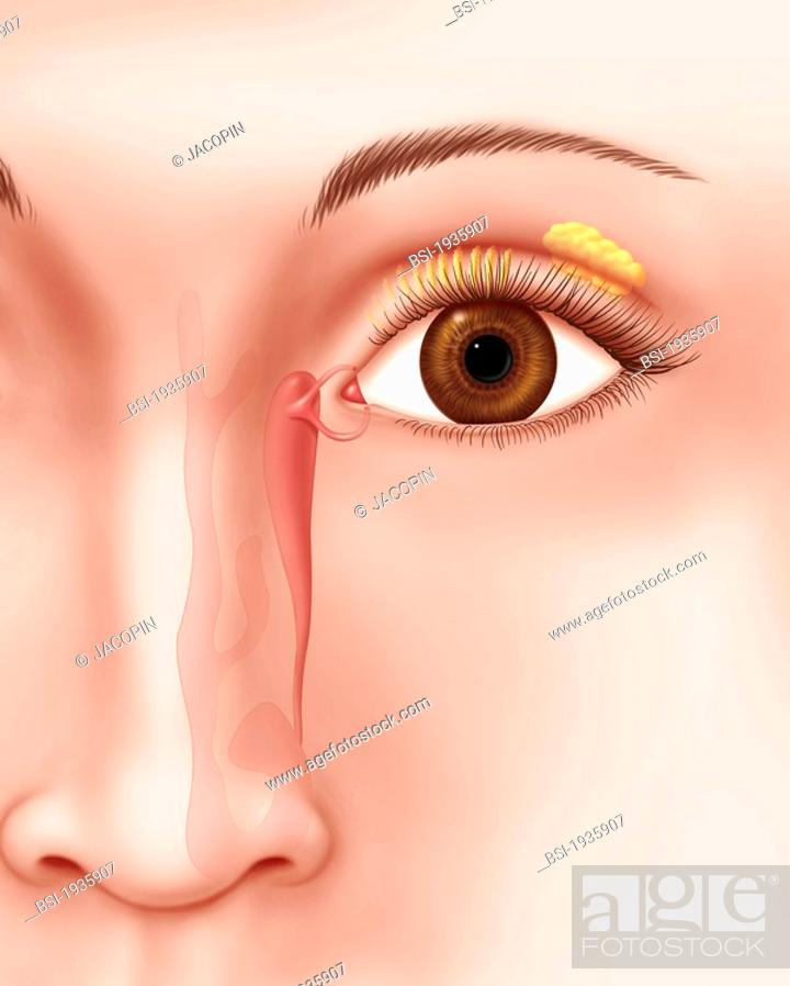 LACRIMAL APPARATUS, DRAWING Lacrymal apparatus  lacrimal canal and