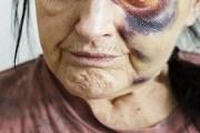Torturonte nënën e vet 101 vjeçe, arrestohet i biri