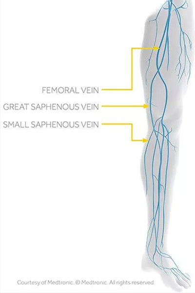 Great and Small Saphenous Veins Vegas Valley Vein Institute