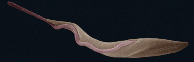Trypanosoma brucei con il suo flagello sbarazzino nella forma in cui si trova nell'intestino delle mosche Tsé Tsé in un microgramma a falsi colori di Zephyr, su licenza CC-BY-SA 3.0, tramite wikimedia commons.