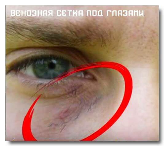Вегето-сосудистая дистония и венозная сетка под глазами