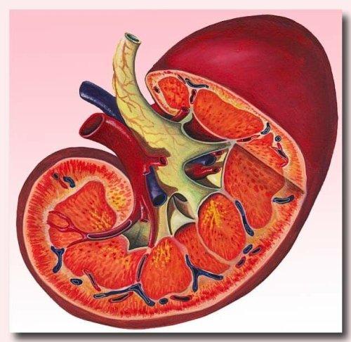 Сужение почечной артерии как причина повышения давления