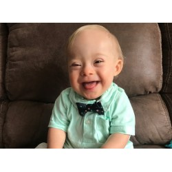 Mind Down Syndrome New Gerber Baby Winner Lucas New New Spokesbaby Has Down So Pacific Standard New Gerber Baby nice food New Gerber Baby