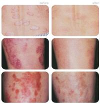 Does UV Light Treatment Help Psoriasis  A Psoriasis ...