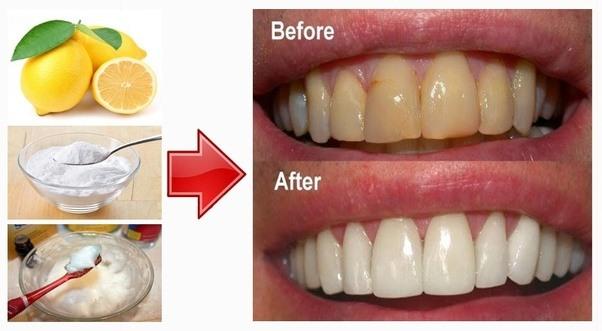 How Does Baking Soda Make Teeth White Quora