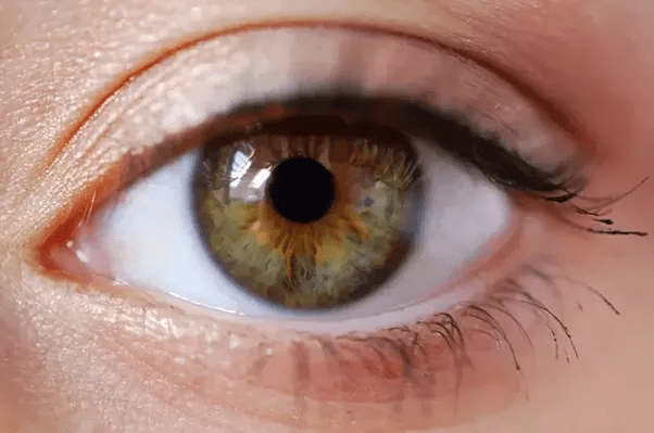 How Do Hazel And Light Brown Eyes Differ Quora